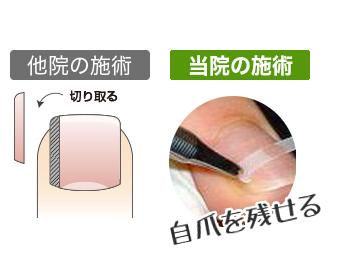 ふなき接骨院巻き爪14